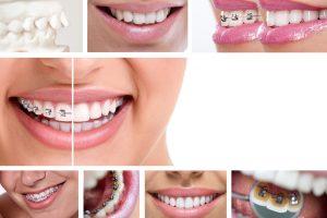 1 8 300x200 - Ortodonta w Grudziądzu – specjalista nie tylko dla dzieci!