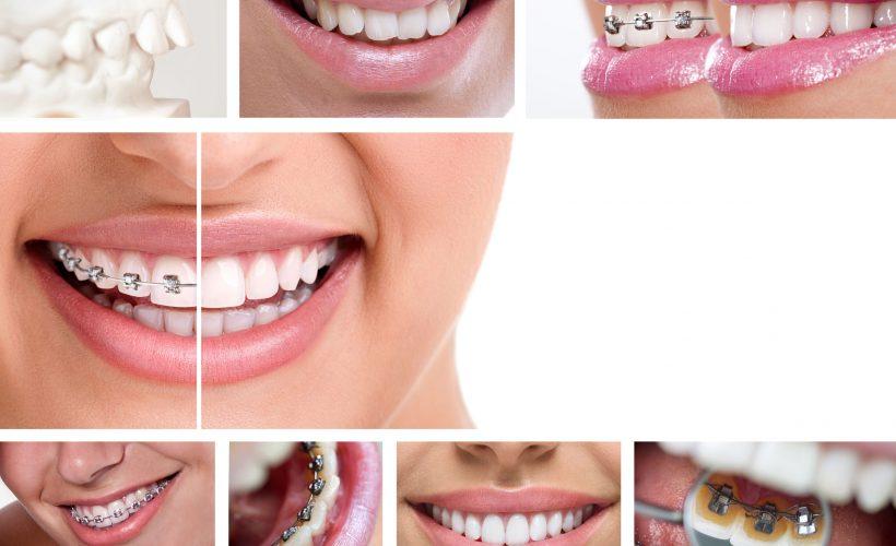 1 8 820x500 - Ortodonta w Grudziądzu – specjalista nie tylko dla dzieci!